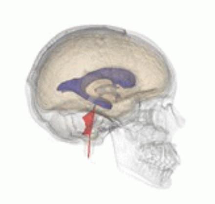 Cuarto ventrículo