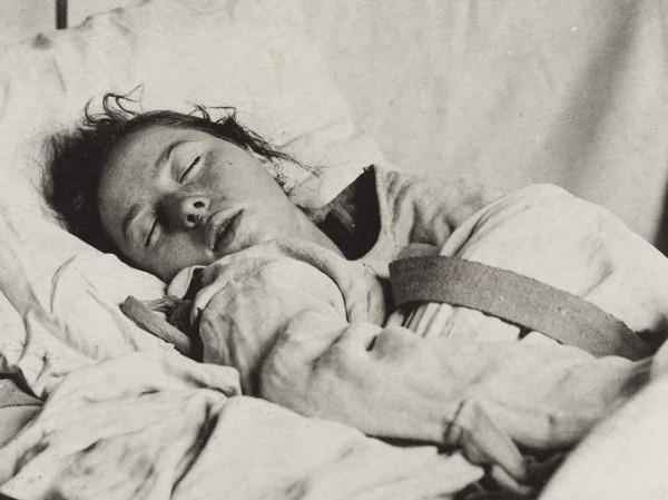 Paciente con histeria.