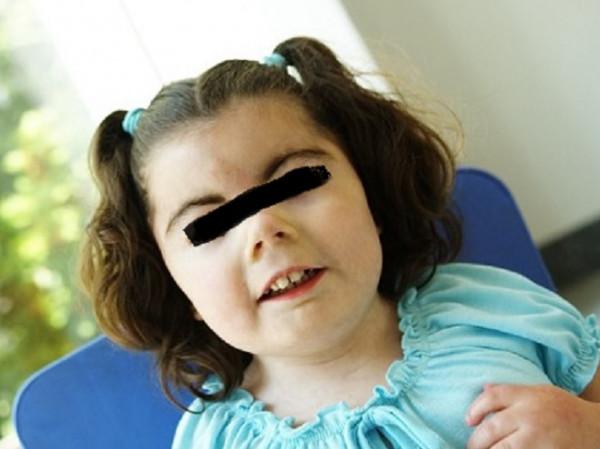 Niña con síndrome de Cornelia de Lange