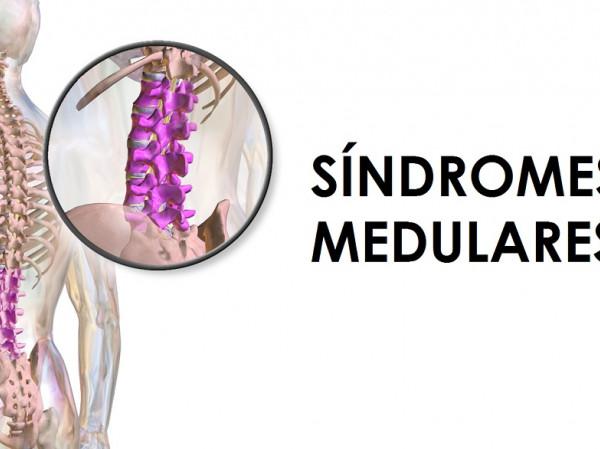 Síndromes medulares: tipos, causas y síntomas