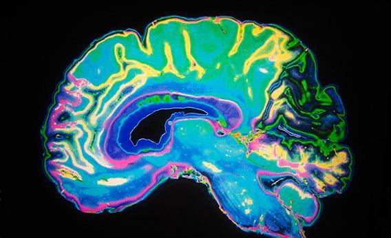Dopamina: 7 funciones esenciales de este neurotransmisor