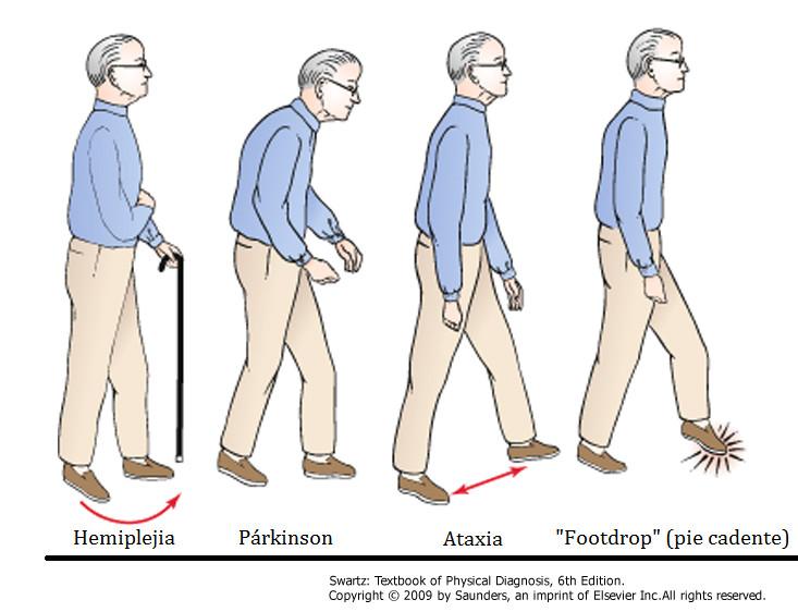 Formas de caminar según el trastorno neurológico de base.