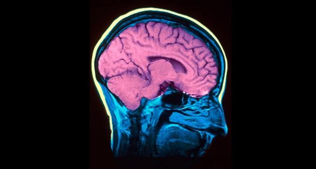 transtorno bipolar - default - Transtorno Bipolar: 10 características e curiosidades que você não sabia