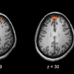 Una investigación descubre que la esquizofrenia es la manifestación de ocho mutaciones genéticas
