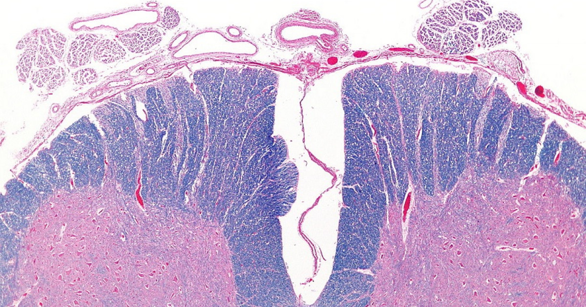 Los 2 tipos de mielitis: síntomas, causas y tratamiento