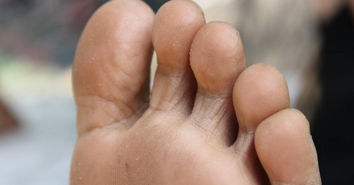porque se produce el hongo en los pies