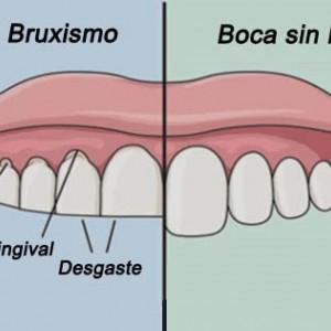 Bruxismo (rechinar los dientes): causas, síntomas y tratamiento
