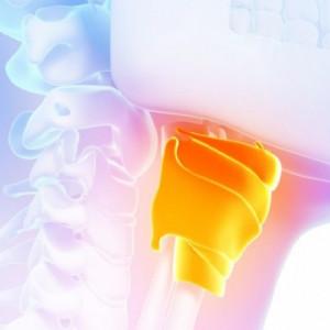 Cáncer de garganta: 9 síntomas a tener en cuenta