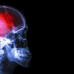 Los 8 peores dolores que sufrimos los humanos