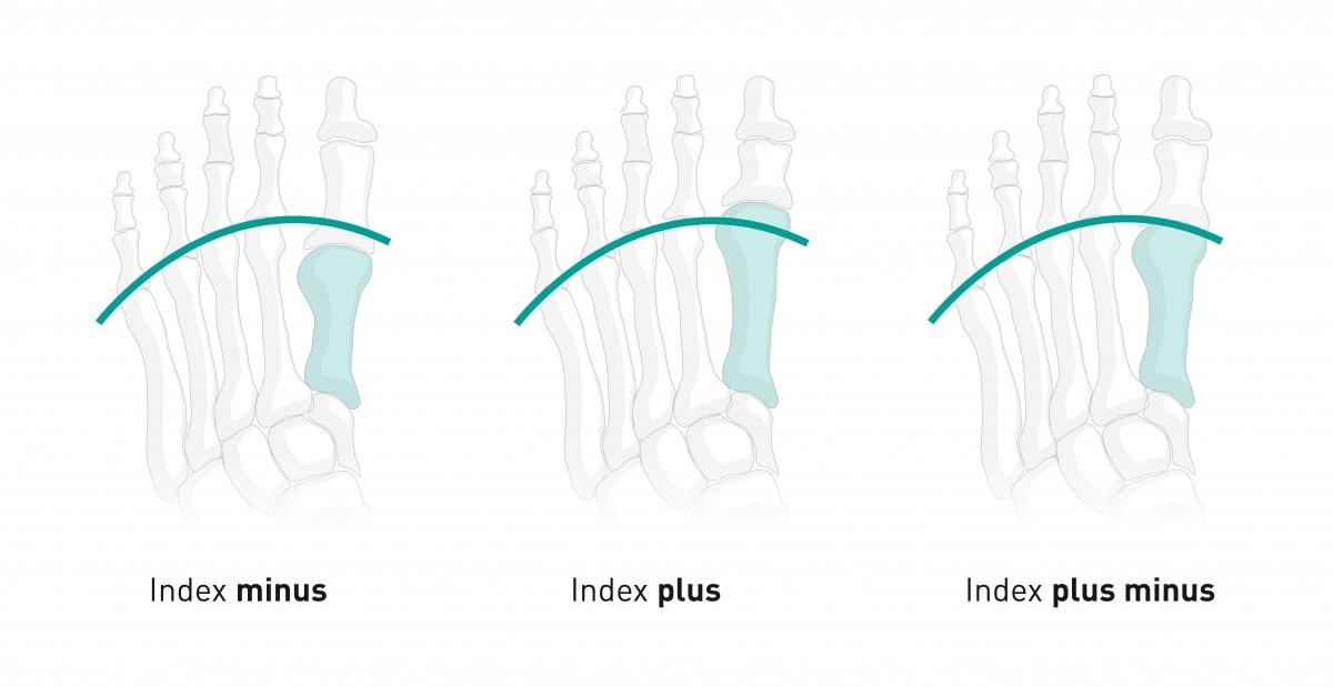 Index plus, index minus, index plus minus
