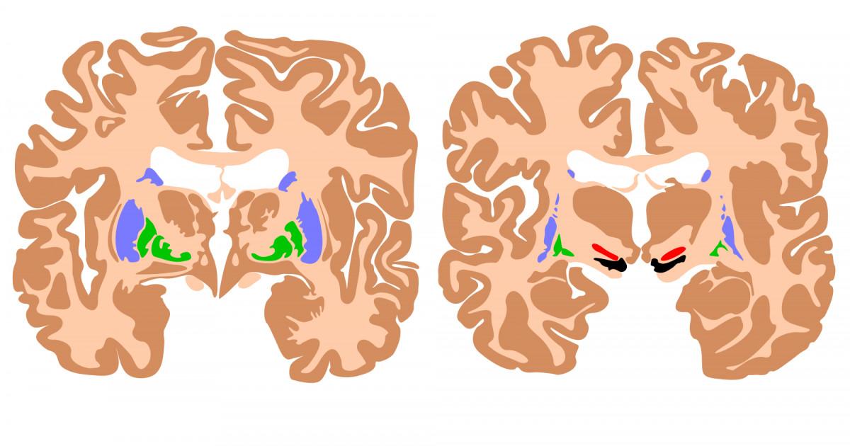 las grasas ayudan al cerebro y al sistema nervioso a desarrollarse correctamente