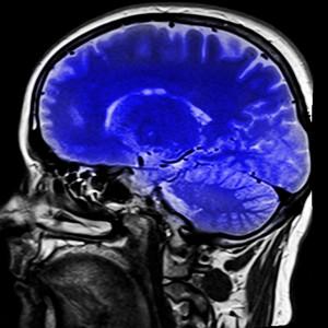 El sedentarismo provoca cambios en el cerebro