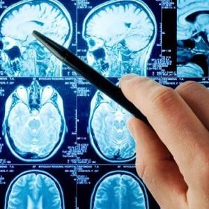 Aneurisma cerebral: causas, síntomas y pronóstico