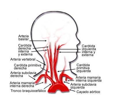 Sistema carotideo