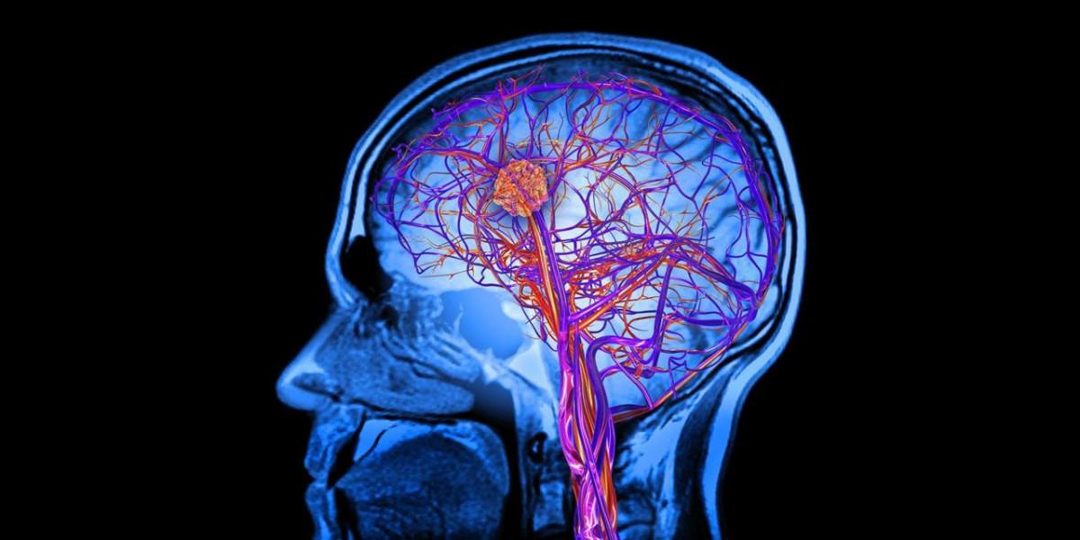Apraxia: causas, síntomas y tratamiento
