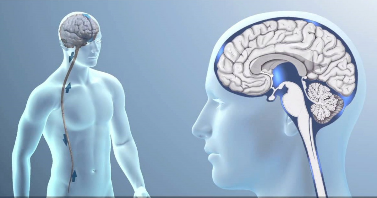 La sobreacumulación de líquido cefalorraquídeo en los ventrículos cerebrales