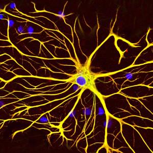 Células gliales: mucho más que el pegamento de las neuronas