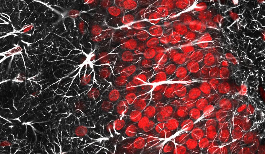 El papel de la glía en la enfermedad neurológica