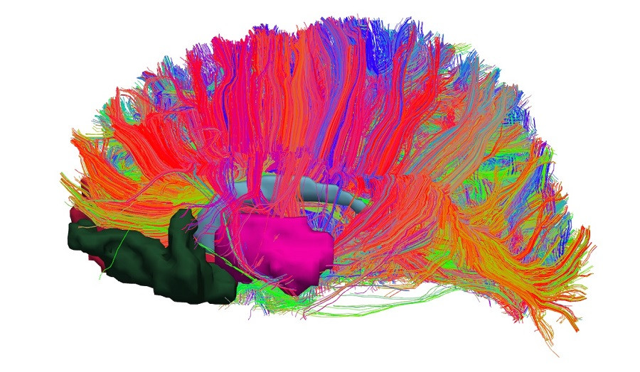 El sistema de recompensa del cerebro: ¿cómo funciona?