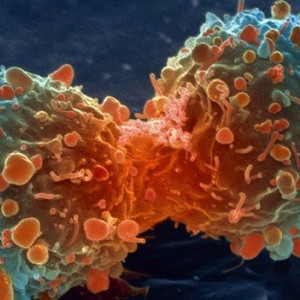 10 mitos populares sobre el cáncer (y por qué son falsos)