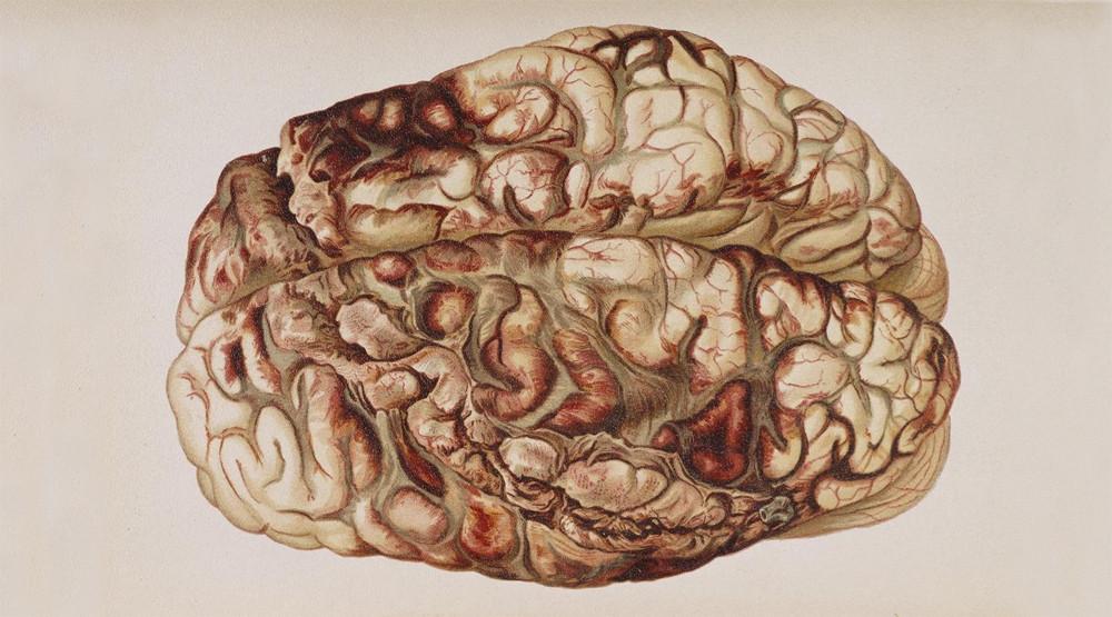 Los trastornos neurológicos en el procesamiento de la información