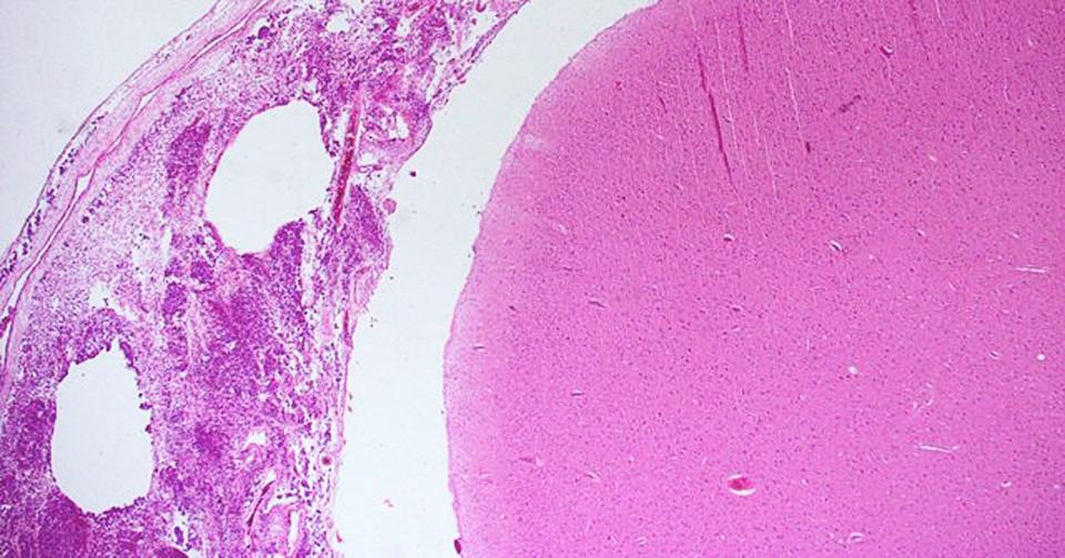Meningitis: causas, síntomas, tratamiento y pronóstico