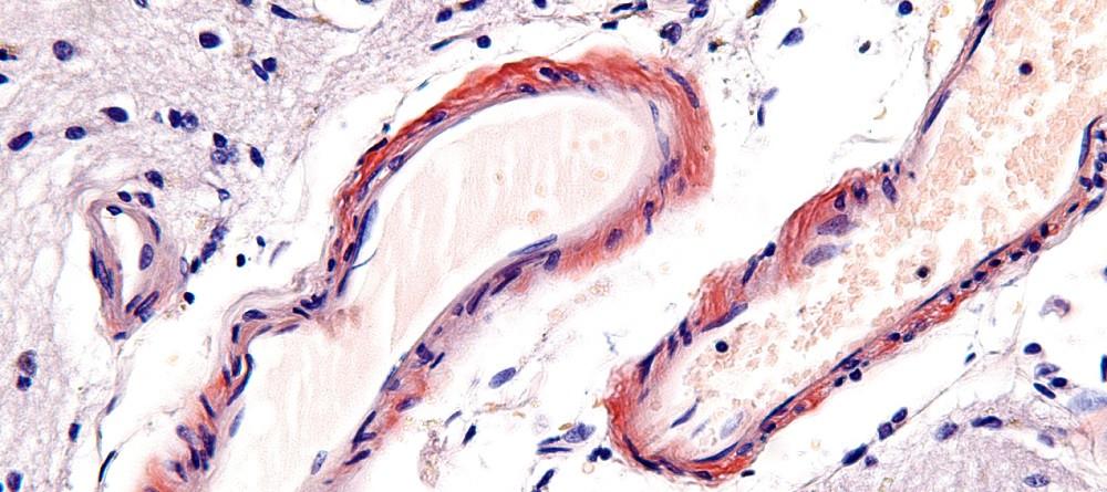 Microangiopatía cerebral: síntomas, causas y tratamiento