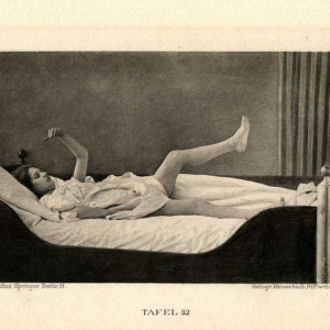 Catatonia: causas, síntomas y tratamiento de este síndrome