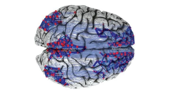 La red neuronal por defecto (RND) ¿qué pasa en nuestro cerebro cuando soñamos despiertos?