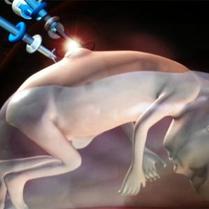 Espina bífida: tipos, causas y tratamiento