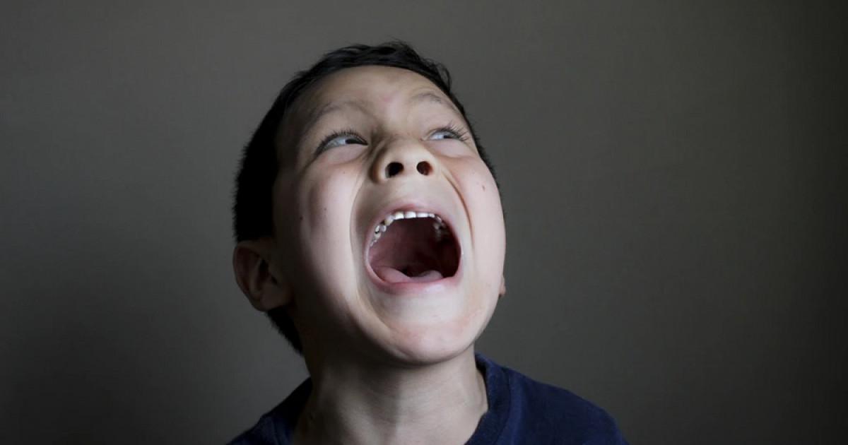 Risa Patologica Caracteristicas Y Trastornos Asociados A Este Sintoma
