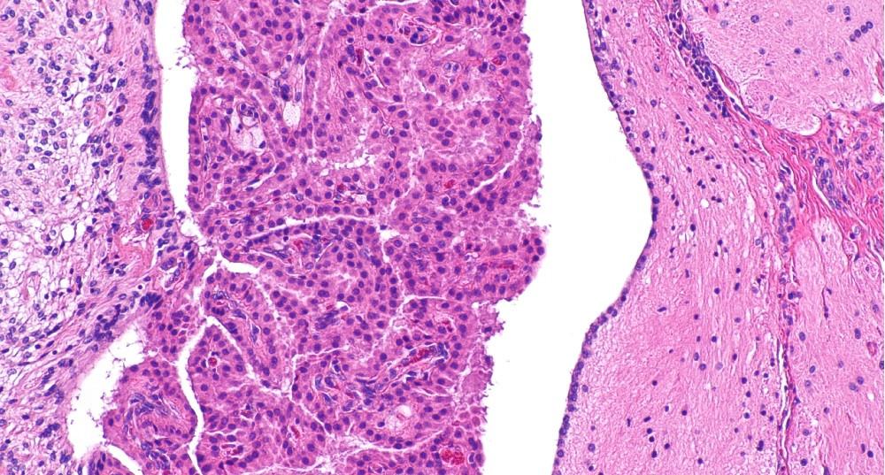 Plexos coroideos: anatomía, funciones y patologías