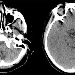 Síndrome de Pfeiffer: causas, síntomas y tratamientos