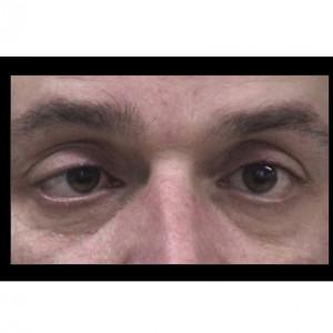 Síndrome de Miller Fisher: síntomas, causas y tratamiento