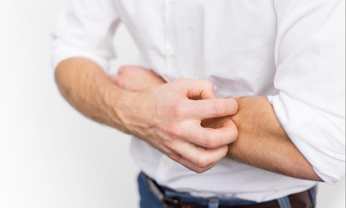 Síndrome de Ekbom (delirio de parasitosis): causas y síntomas