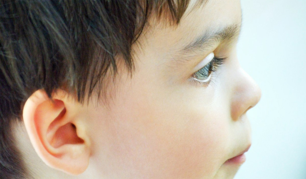 Síndrome de Rubinstein-Taybi: causas, síntomas y tratamiento