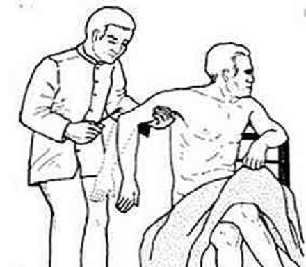 Análisis del reflejo tricipital