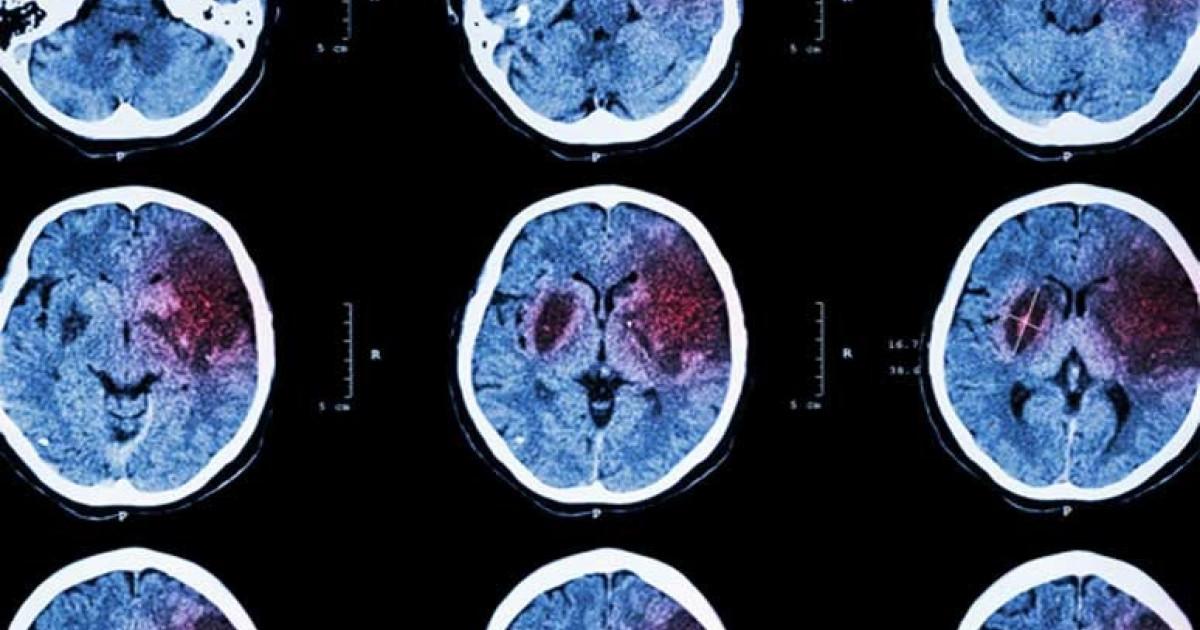Que pasa cuando ocurre un derrame cerebral